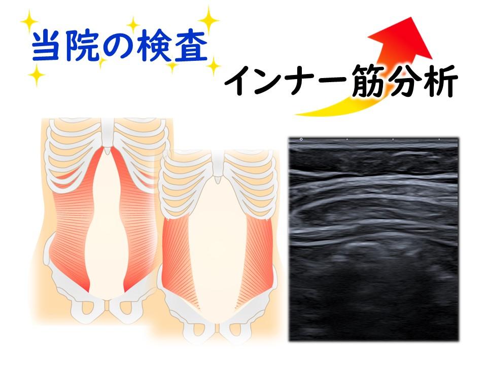 しっかり検査―インナー筋分析 三田市・神戸市・西宮市から多数ご来院の産後骨盤矯正mamaNEXT