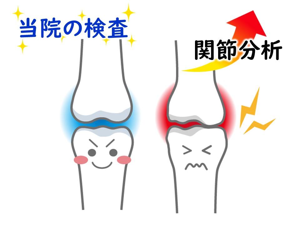 しっかり検査―関節分析 三田市・神戸市・西宮市から多数ご来院の産後骨盤矯正mamaNEXT